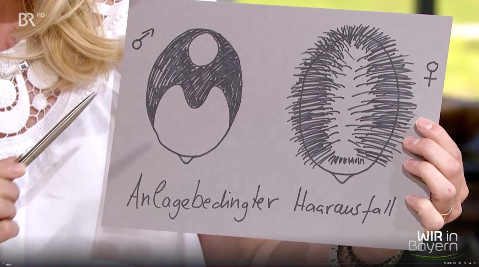 Dr. med. Monique Stengel, BR, Wir in Bayern, 17.06.19 Thema Haarausfall